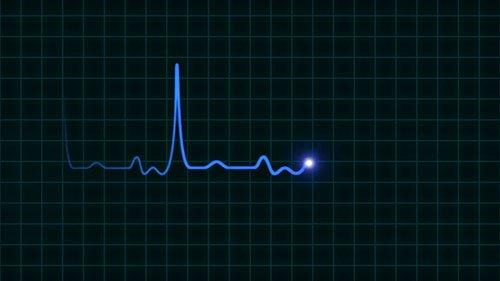 Elettrocardiogramma che mostra la frequenza cardiaca